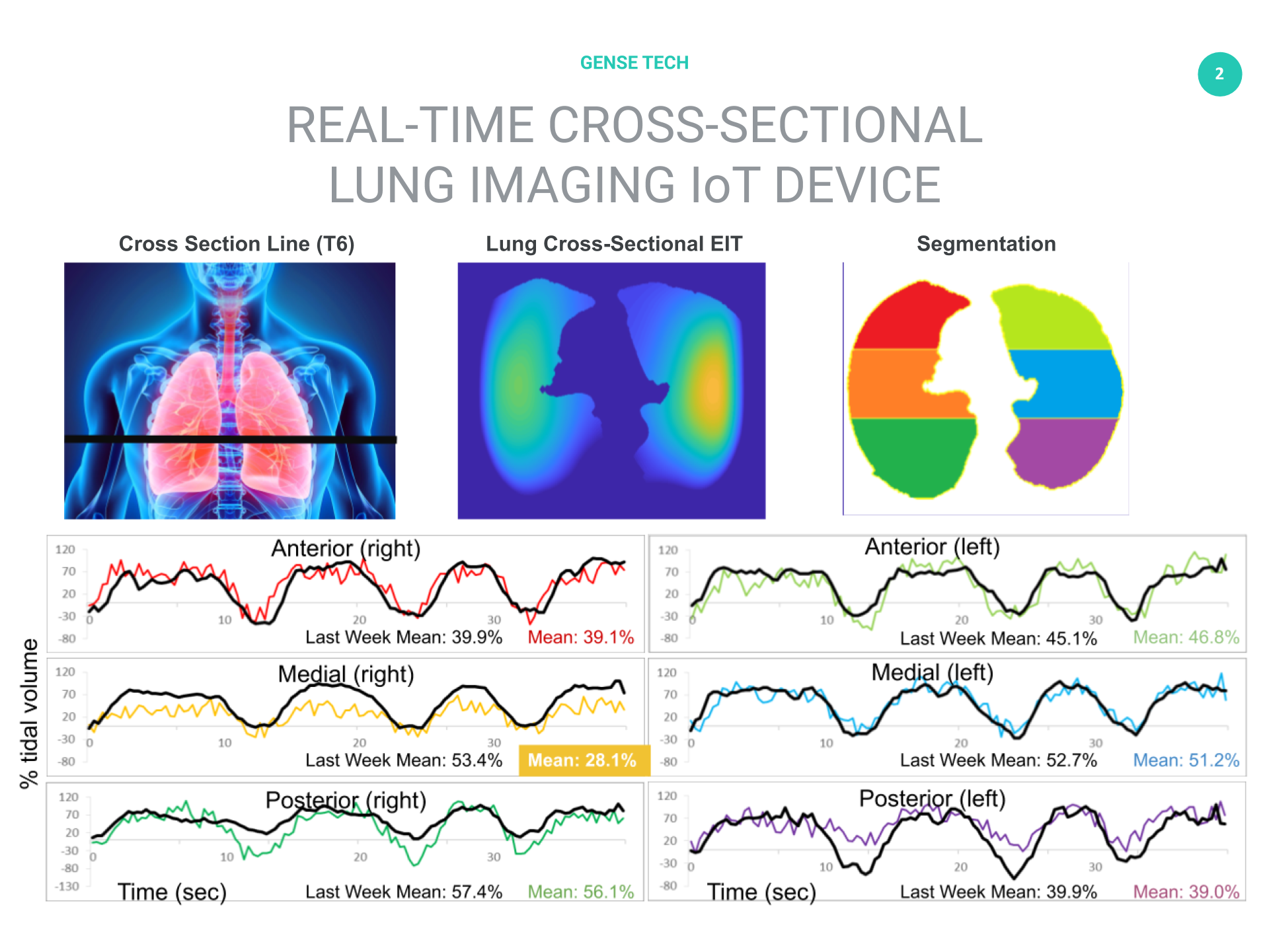 Lung imaging IoT for remote monitoring in isolation