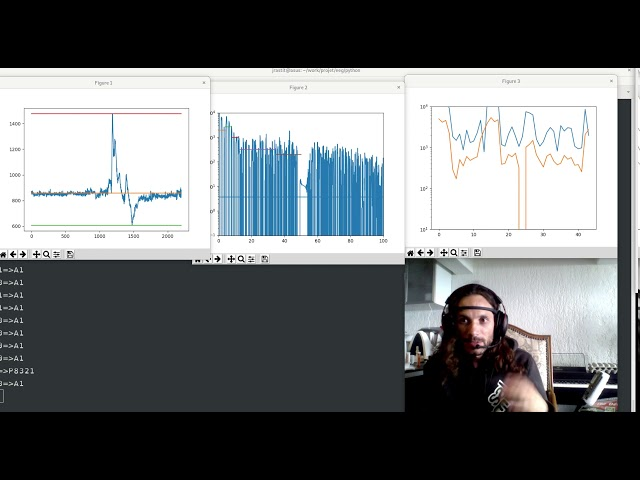 EEG State Monitoring