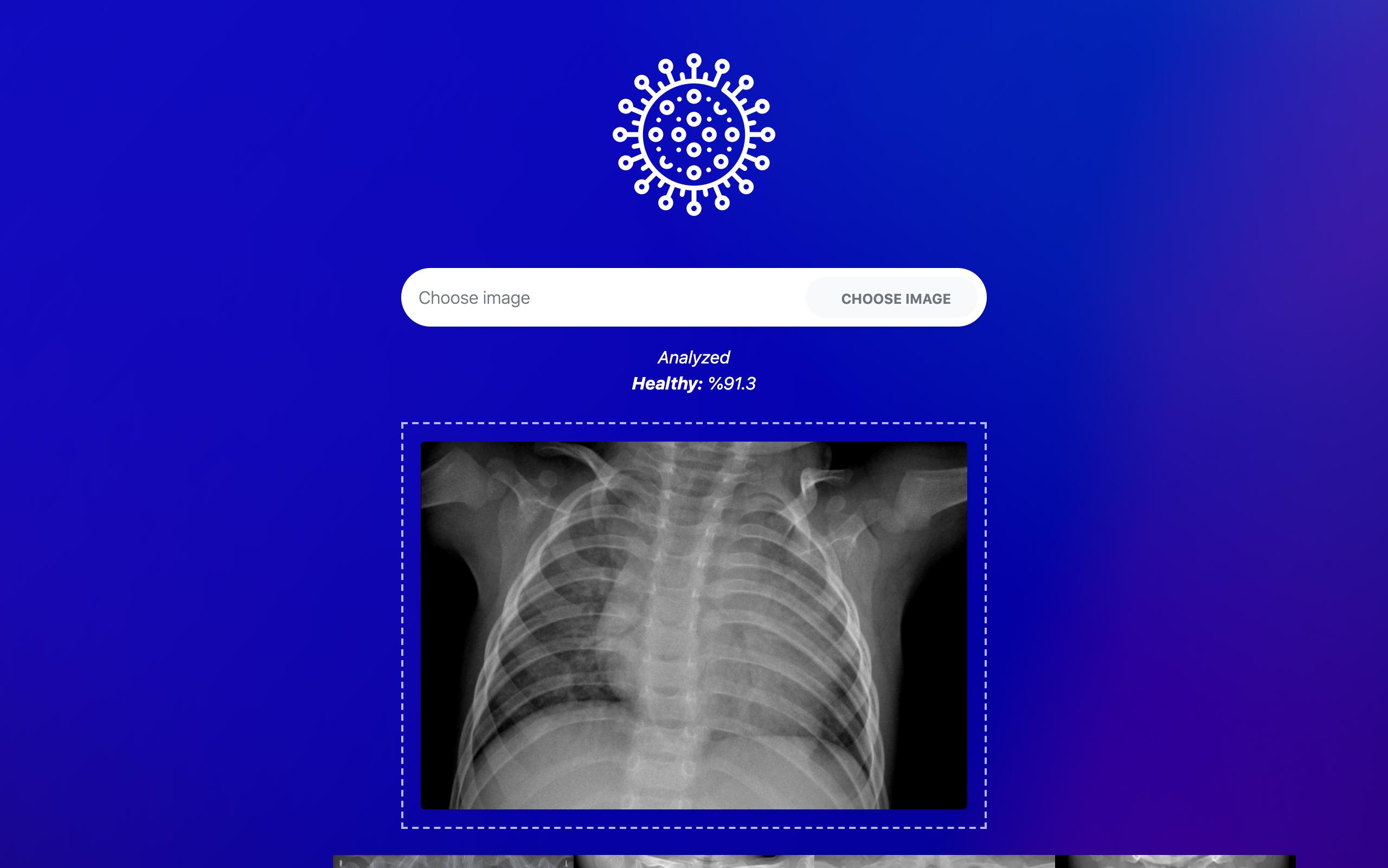 T-Covid: A Fast COVID-19 Diagnosis Tool