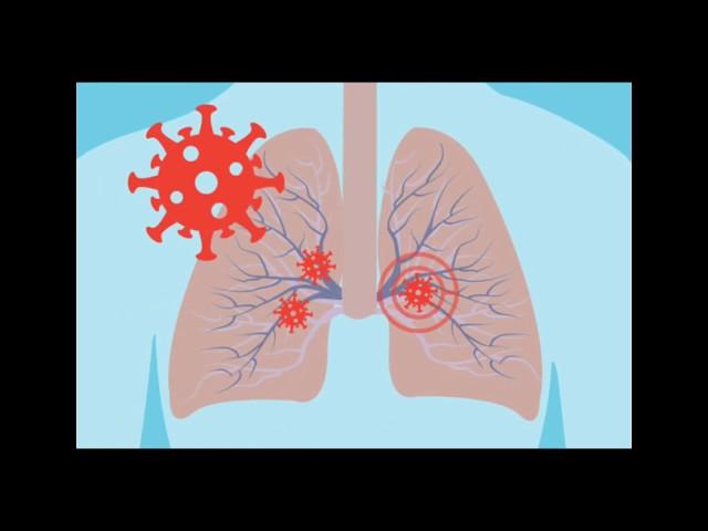 Appus 0.1 : The Inhaling Machine